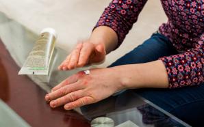 Atopic Dermatitis Eczema Treatments