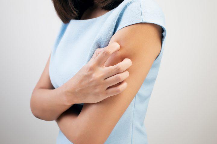 Dupixent Eczema Treatment