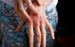Dupixent Dupilumab Eczema Treatments
